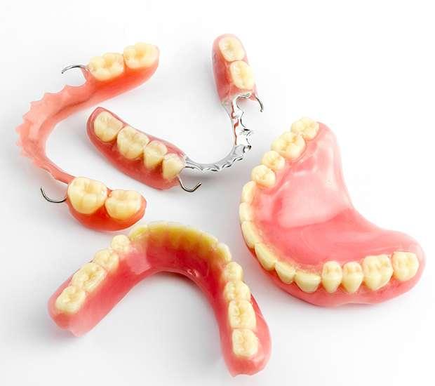 Houston What Do I Do If I Damage My Dentures