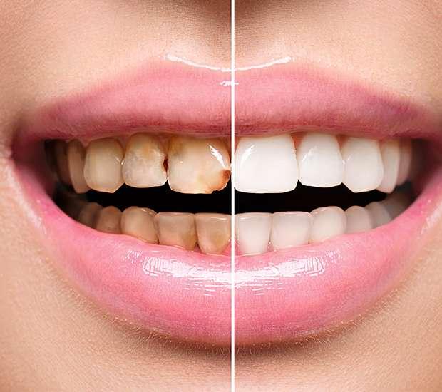 Houston Dental Implant Restoration