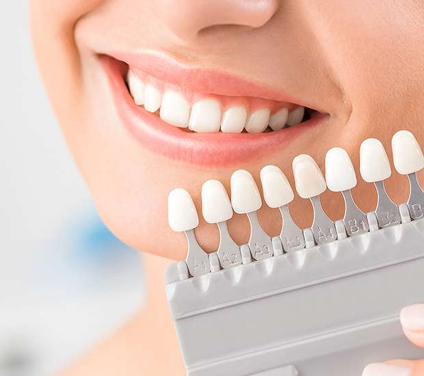 Houston Dental Veneers and Dental Laminates