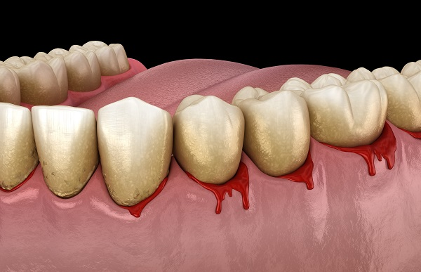 Common Signs Of Gum Disease