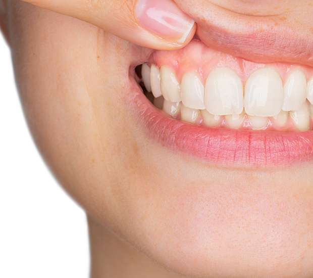 Houston Gum Disease