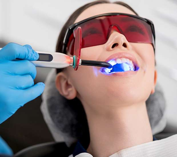Houston Professional Teeth Whitening