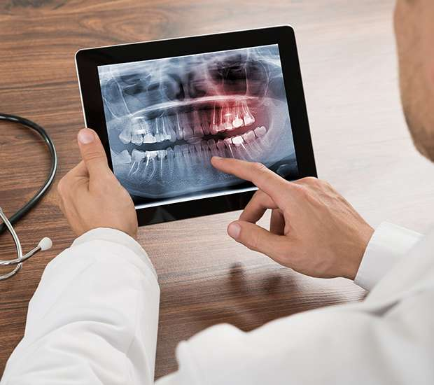 Houston Types of Dental Root Fractures